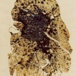 A lung with coal workers' pneumoconiosis and progressive massive fibrosis, also known as severe black lung disease. Photos courtesy of CDC-NIOSH