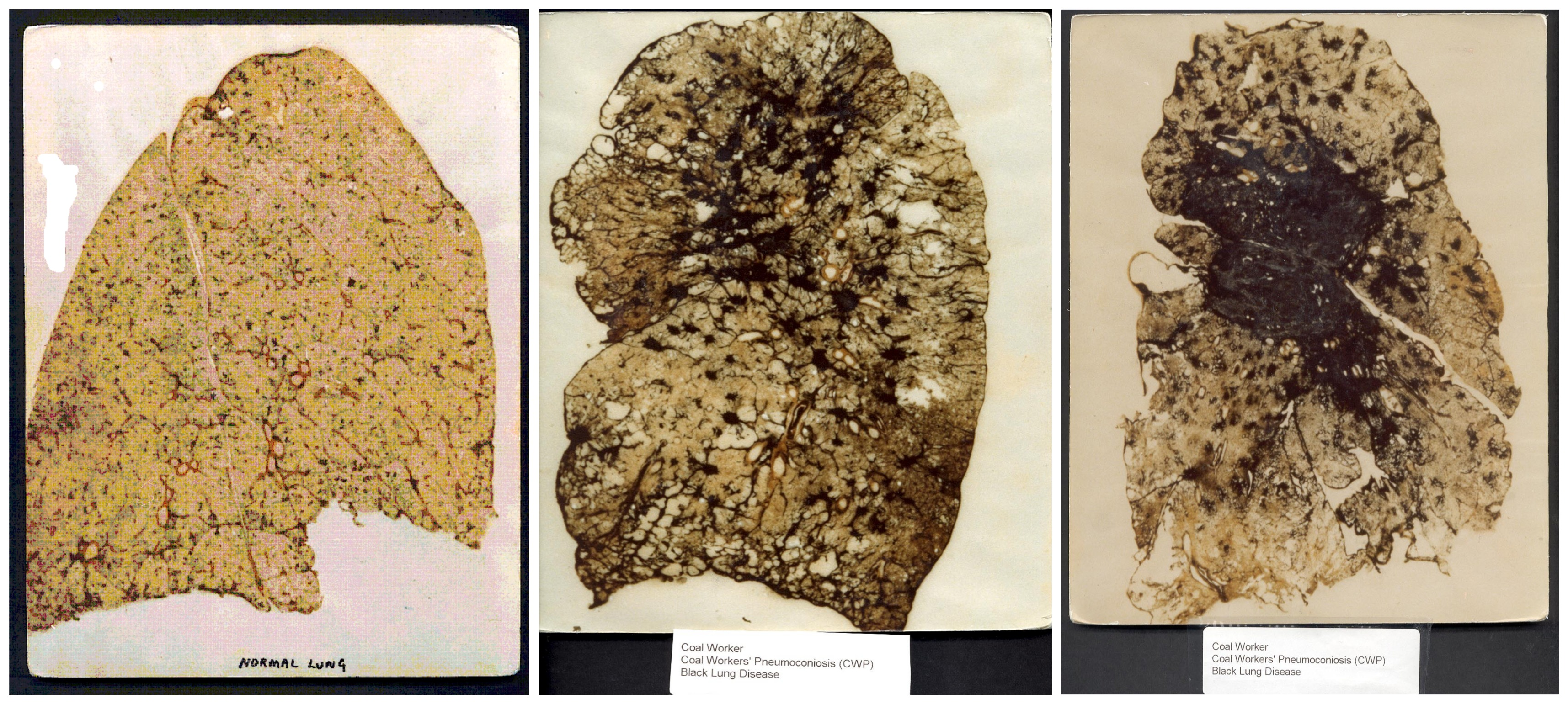 normal human lung compared to diseased lung