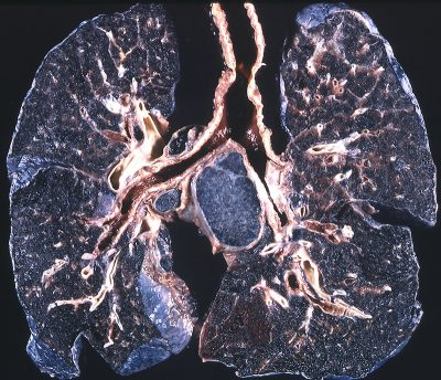 complicated black lung disease